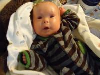 Boala rara care i-a acoperit trupul acestui baietel cu solzi. Suferinta cumplita prin care trece de 2 ori pe zi