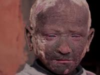 Baiatul care se transforma intr-o statuie de piatra din cauza bolii de piele de care sufera. Vedeta care i-a sarit in ajutor