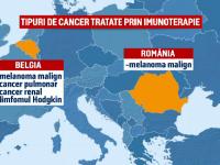 O noua sansa pentru bolnavii cu cancer de piele in stadiu avansat. Statul a aprobat tratamente gratuite de imunoterapie