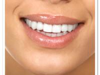 Dentistii recomanda inlocuirea gumei de mestecat cu branza. Efectele neasteptate asupra dintilor