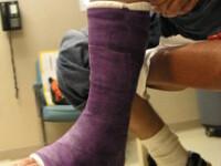 Zeci de locuitori din Cluj-Napoca au suferit fracturi de membre in ultimele trei zile