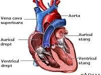 Premiera mondiala in medicina: O inima artificiala a fost implantata in Franta