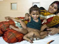 CAZ SOCANT! Copil cu PATRU maini si PATRU picioare, venerat in India!