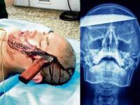 A ajuns, pe picioarele lui, la spital cu un cutit de 25 cm infipt in cap!