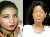 Deznodamant tragic in cazul femeii superbe, transformata intr-un monstru de fostul sot.VIDEO si FOTO
