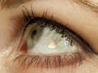 Ce risca femeia care a cheltuit mii de dolari ca sa aiba implanturi sub forma de inima in ochi