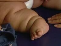 A ajuns la 21 de kilograme la 8 luni dupa nastere. Explicatia medicilor pentru starea bebelusului din Columbia