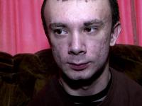 Tanarul din Hateg, bolnav de o maladie rara, operat la Viena. Zeci de oameni au donat bani pentru interventia salvatoare