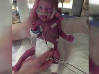 Cand s-a nascut, avea intreg bratul cat un deget de om mare si cantarea 400 de grame. Cum arata bebelusul la 3 luni