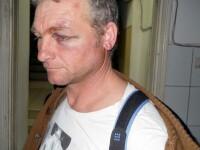 Barbat de 41 de ani din Cluj, batut si lasat cu clavicula rupta de 3 sateni. De ce nu a dorit sa depuna plangere la politie