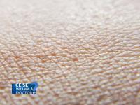 Ce crema trebuie sa folositi daca aveti alergii de piele. Apa aplicata pe rana doar amplifica uscarea