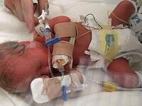 Incredibil!Bebelus salvat, dupa ce medicii i-au lipit o artera cu superglue