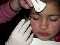 Soc in SUA. O fetita de 8 ani, injectata cu botox pentru un concurs. FOTO