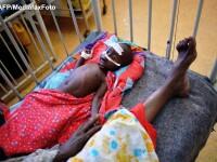 Raport ONU: Aproape 260.000 de somalezi, jumatate copii sub 5 ani, au murit din cauza foamei. FOTO
