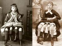 Povestea nemuritoare a femeii cu 4 picioare. Explicatia medicala din spatele unei anomalii vechi de peste 100 de ani
