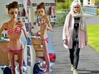 A ajuns sa fie anorexica dupa o noapte petrecuta cu un baiat. Drama unei tinere care a ajuns la 25 de kg cu 13 calorii pe zi