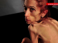La 37 de ani cantareste sub 20 de kilograme. Imagini socante cu o fosta actrita care sufera de anorexie