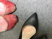 Cum arata picioarele unei chelnerite dupa o zi de munca in care a fost obligata sa poarte tocuri. Imaginea a ajuns viral