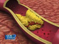 Trigliceridele marite, la fel de daunatoare pentru sanatate precum colesterolul. Ce boala periculoasa pot declansa