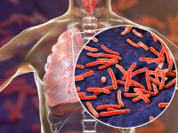 Numărul deceselor provocate de tuberculoză a crescut după o pauză de 10 ani. Cazurile de Covid îngreunează accesul în spitale