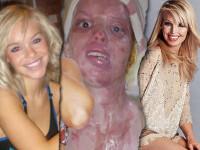 Uite cum arata la doi ani dupa ce a fost victima unui atac cu acid! Foto