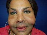 Chipul de piatra. Mutilata pe viata de un doctor care i-a facut implanturi cu CIMENT. VIDEO