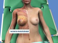 Premiera in Romania. Cum au reconstruit medicii sanii unei paciente, dupa o mastectomie la cerere