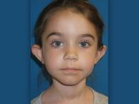 Fetita de 6 ani dusa la chirurgul estetician dupa ce a venit plangand acasa. Cum arata dupa operatie