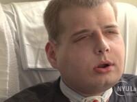 Cel mai scump transplant de fata din lume: a costat 1 milion de dolari. Un pompier a primit