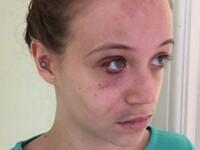 Bătută crunt în propria casă de o bandă de hoți, în timp ce părinții erau în vacanță