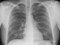 Cum ne afectează poluarea. Două gaze se intersectează în nasul și plămânii noștri