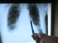 Boala de plămâni de care suferă opt români din 100. Care e principalul factor