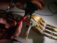 Premiera medicala in Romania: un tanar a primit o mana bionica