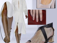 Picioare de modele: unghii infectate, zgarieturi si vanatai