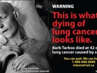 Cea mai socanta campanie anti-fumat. Bolnavi de cancer pe patul de moarte, pe pachetele de tigari
