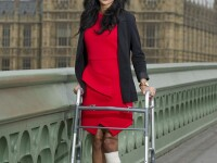 Modelul care a ramas fara un picior dupa un accident le motiveaza pe tinerele din Marea Britanie