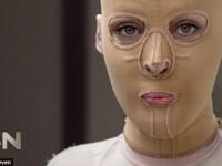 Atacata de o sotie geloasa, o femeie a trait cu o masca pe fata timp de doi ani