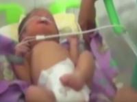 Cum arata baietelul care s-a nascut cu doua nasuri. Acest sindrom apare o data la 15.000 de cazuri. VIDEO