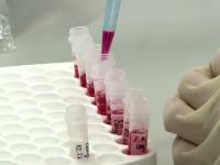 Ancheta la spitalul din Craiova, dupa ce sase pacienti au fost infectati cu o bacterie ucigasa.