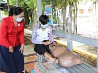 FOTO. Ce a pățit un tânăr după ce un țânțar l-a înțepat în picior. Rezultatul analizelor este crunt