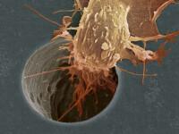 500.000 de romani sunt diagnosticati cu cancer!