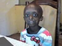 La 12 ani arata ca o batrana de 80. Primul caz intalnit la un copil de culoare. VIDEO