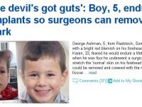 Motivul uimitor pentru care acest copil a ajuns sa arate ca un demon. FOTO