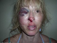 Imagini socante. A fost batuta cu bestialitate de politisti pentru ca a intrebat unde e sotul ei