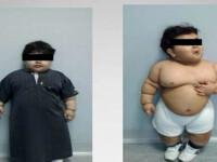 Cea mai tanara persoana din lume operata de obezitate. Cum arata acest acopil acum