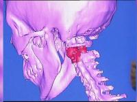Premiera medicala: prima vertebra obtinuta cu ajutorul unei imprimante 3D, implantata unui copil
