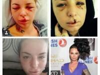 Cum arata acum Christy Mack, actrita de filme XXX care a fost batuta crunt de iubitul ei, War Machine