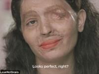 Cumnatul ei i-a mutilat chipul cu acid. Cum reuseste tanara sa se machieze pentru a arata prezentabil. VIDEO