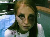 Tanara din Lugoj, sechestrata 22 de ore si batuta cu brutalitate de iubitul gelos, care i-a rupt trei coaste. VIDEO