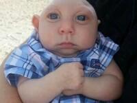 Are o malformatie extrema la creier, dar continua sa traiasca. Cazul unui bebelus care i-a uimit pe medici